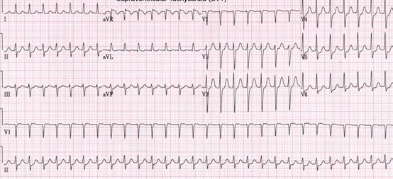 脈 体位 症候群 頻 性